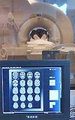Εγκεφαλικοί όγκοι, μηνιγγείωμα: Για την παρακολούθηση των ασθενών μετά από τις θεραπείες, απαιτούνται απεικονιστικοί έλεγχοι με μαγνητική τομογραφία για όλη τη ζωή του ασθενούς.