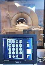 Το μέγεθος του εγκεφάλου όπως υπολογίζεται από τη μαγνητική τομογραφία σχετίζεται με την ευφυία